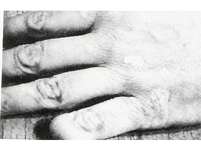 William Burroughs' finger-joint gimmick